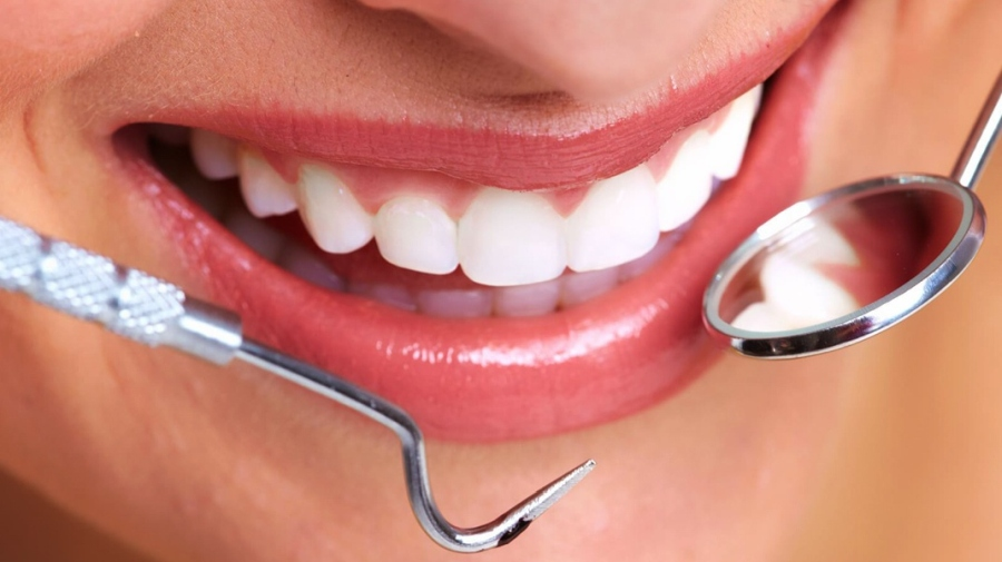 periodontit-6.jpg