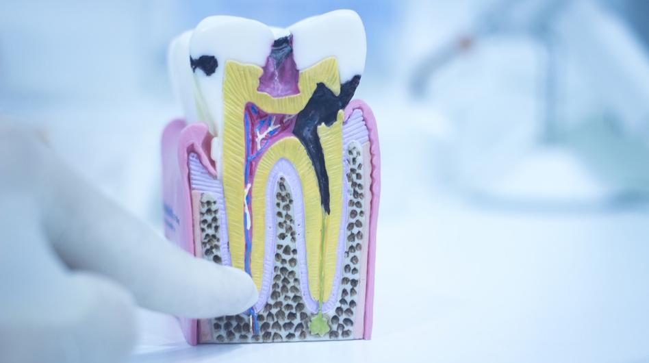 Особенности пульпита зуба
