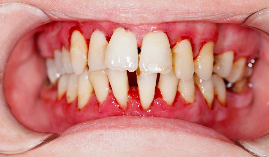 periodontit-1.jpg